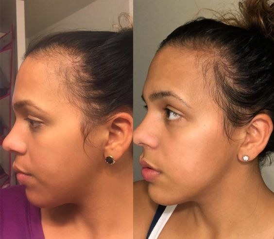 Reviewer's before and after of thinning hair and then fuller hairline