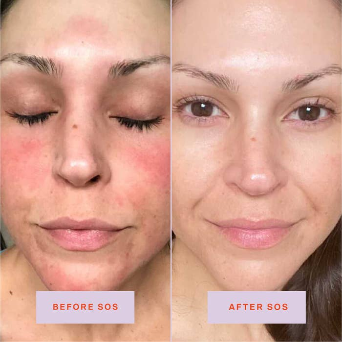A before/after showing reduced redness and irritation after using the spray