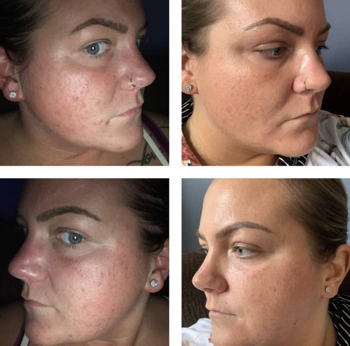 a before and after of a person with significantly less breakouts after using this set