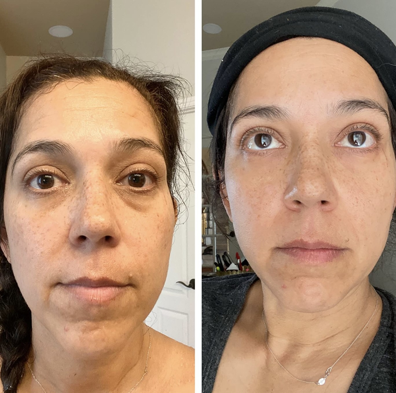 a before and after photo of a person with less puffiness under their eyes after using this kit