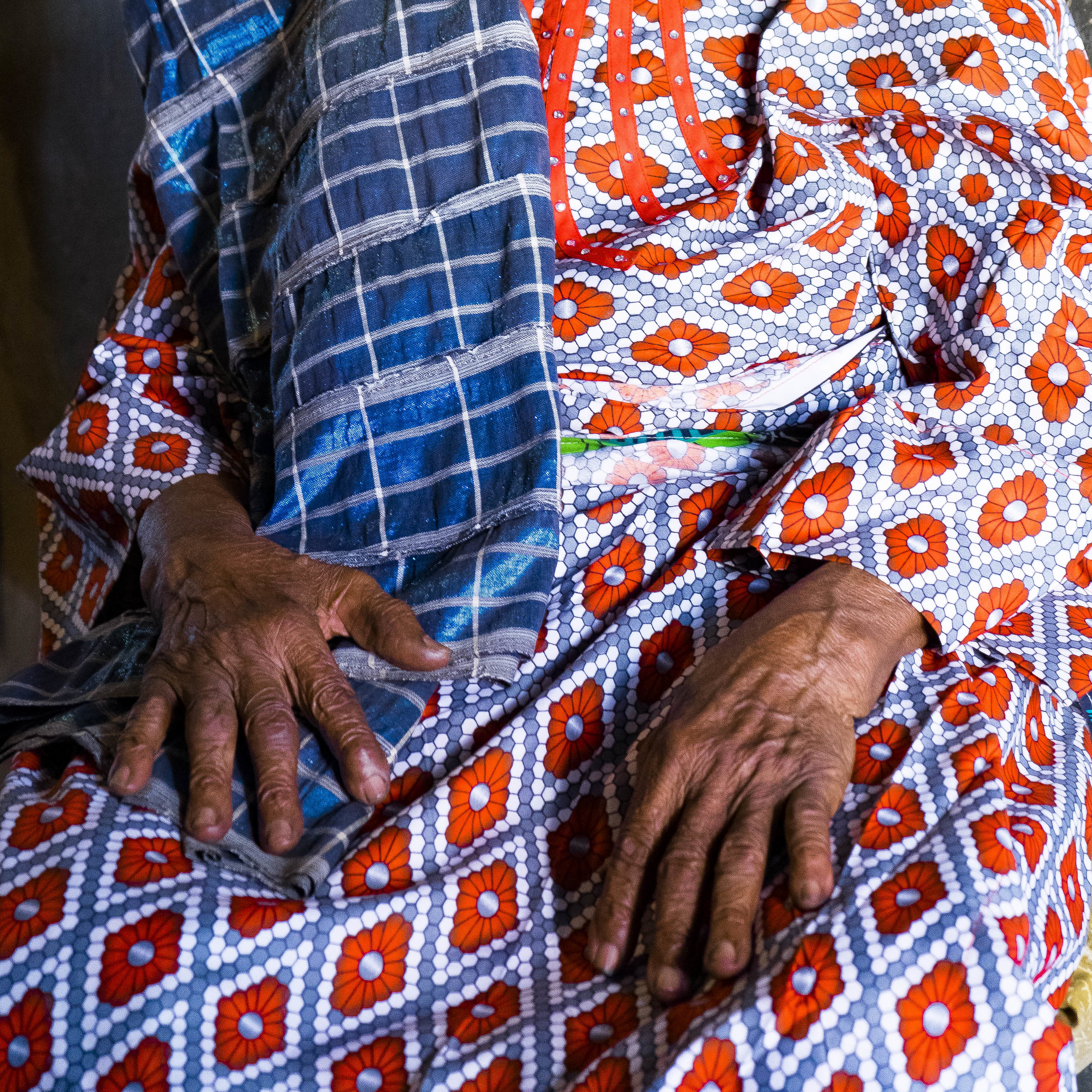 A woman rests her hands on her lap while wearing a boldly patterned dress