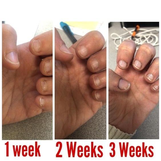 reviewer photo of short nails one week of polish, longer nails two weeks of polish, and long healthy nails three weeks of polish