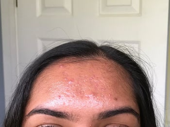 Reviewer showing forehead before using oil blotting sheets
