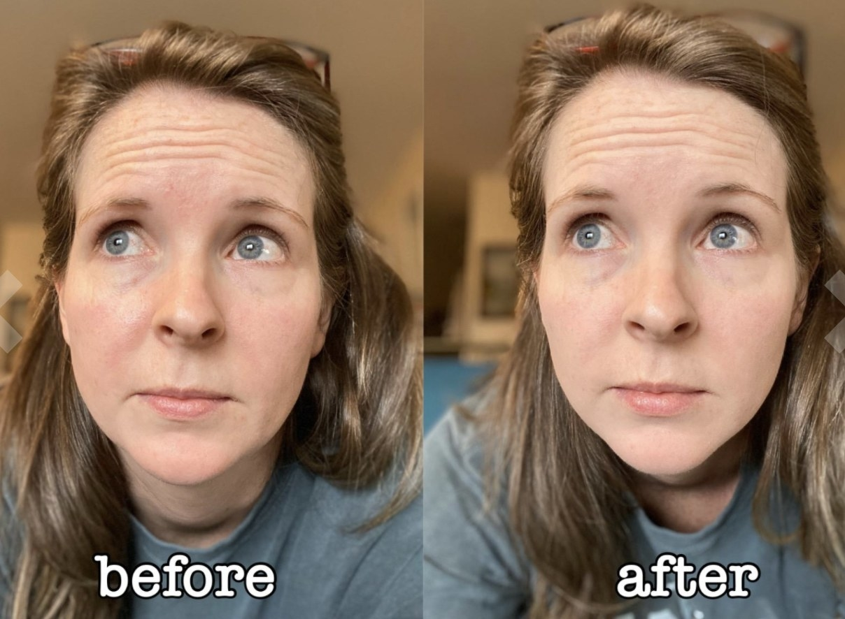 A before and after of a person's skin with translucent powder on
