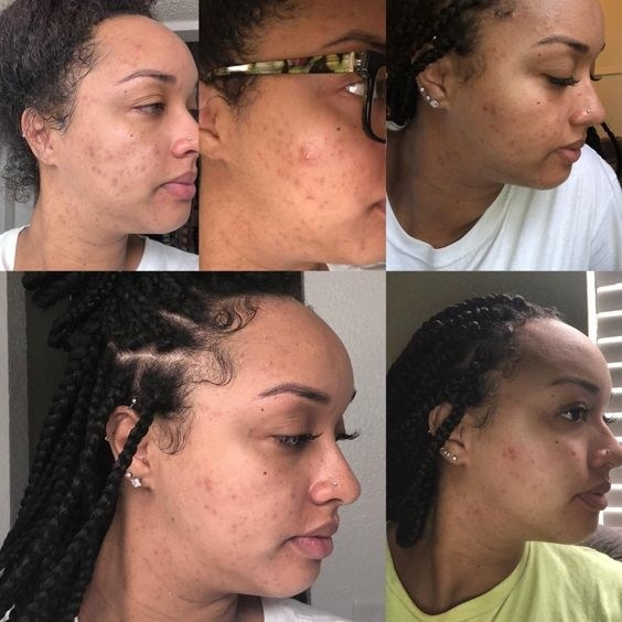 Reviewer's before and after of skin cleaning up from heavy breakout after using the spot treatment