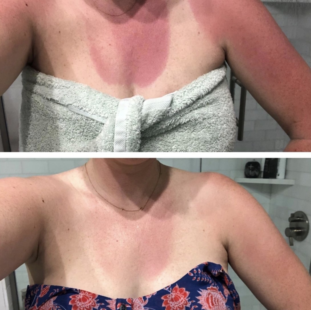 A before and after photo of a sunburn