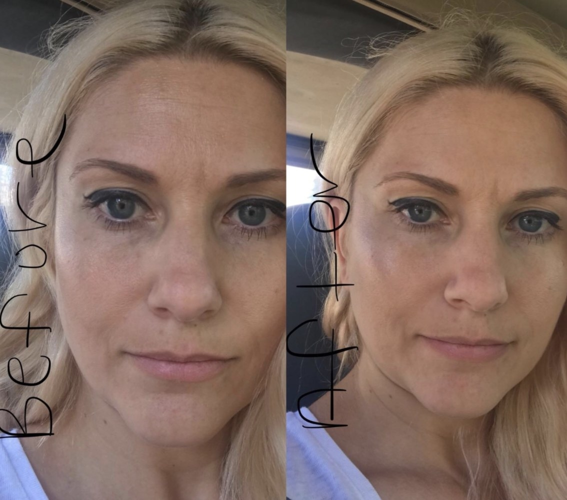 A before and after of a person with oily skin