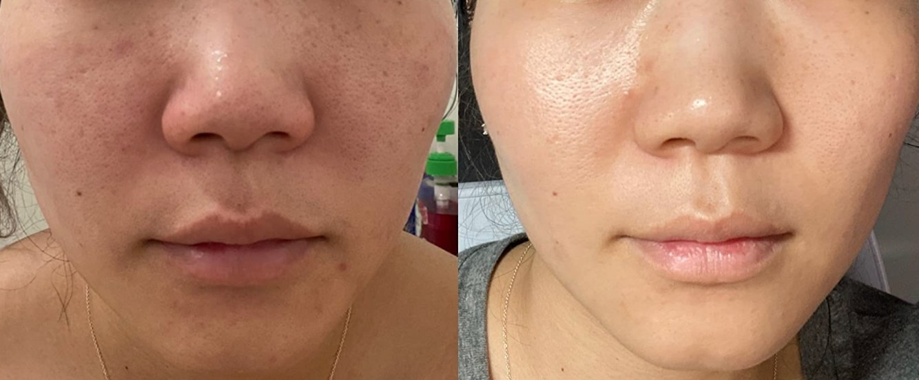 The exfoliant at work on a model in a before and after format