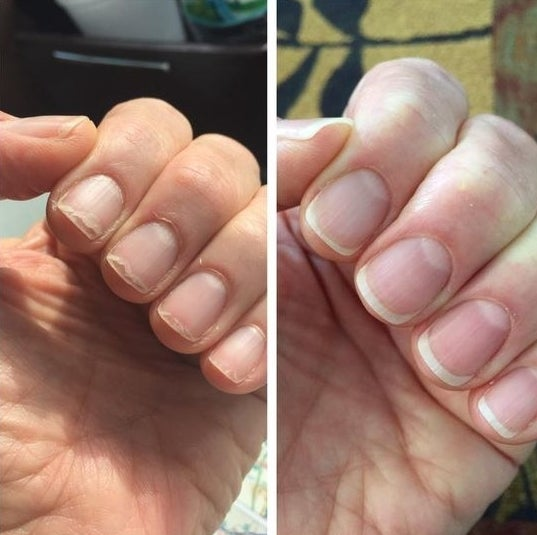 Reviewer's before-and-after of their brittle, broken nails and then healthy-looking nails