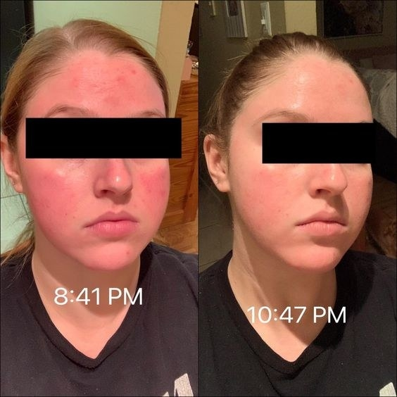Reviewer's picture of their red face at 8:41 PM and then soothed complexion at 10:47 PM