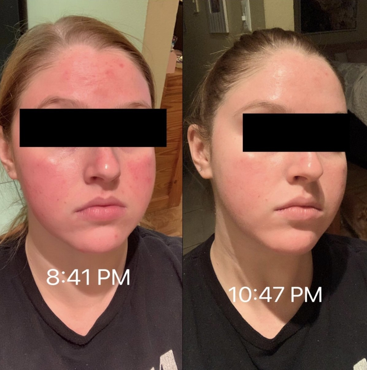 a reviewer with red skin at 8:41 pm and with clear, calm skin at 10:47pm