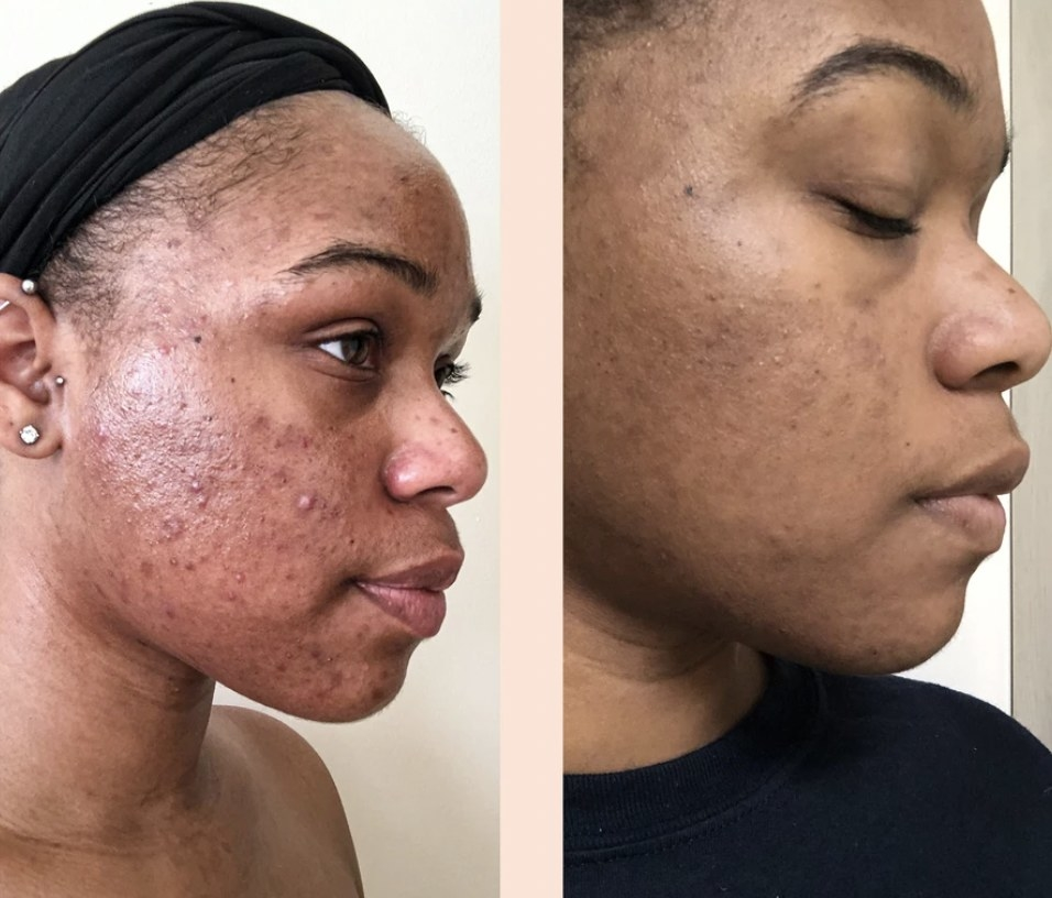 a before and after photo of a person using the serum for six weeks