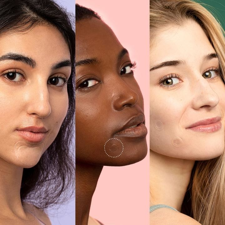 Three models with different skin tones wearing the acne patch