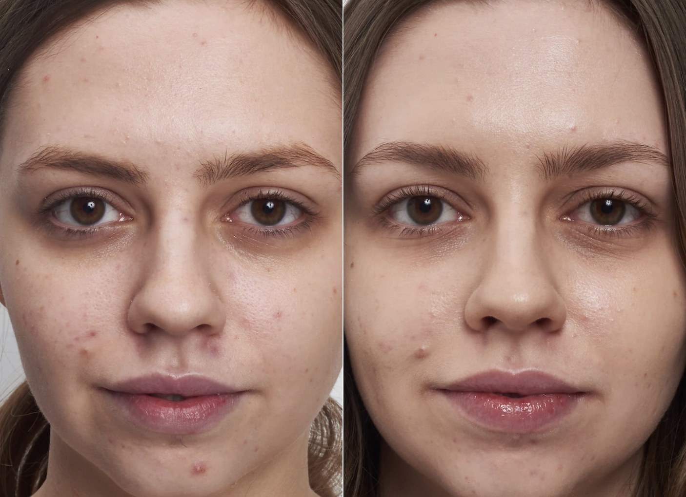a person before and after 60 days of using the acne fighting cleanser