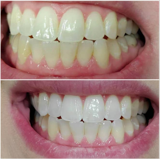 A customer review before and after photo showing their teeth