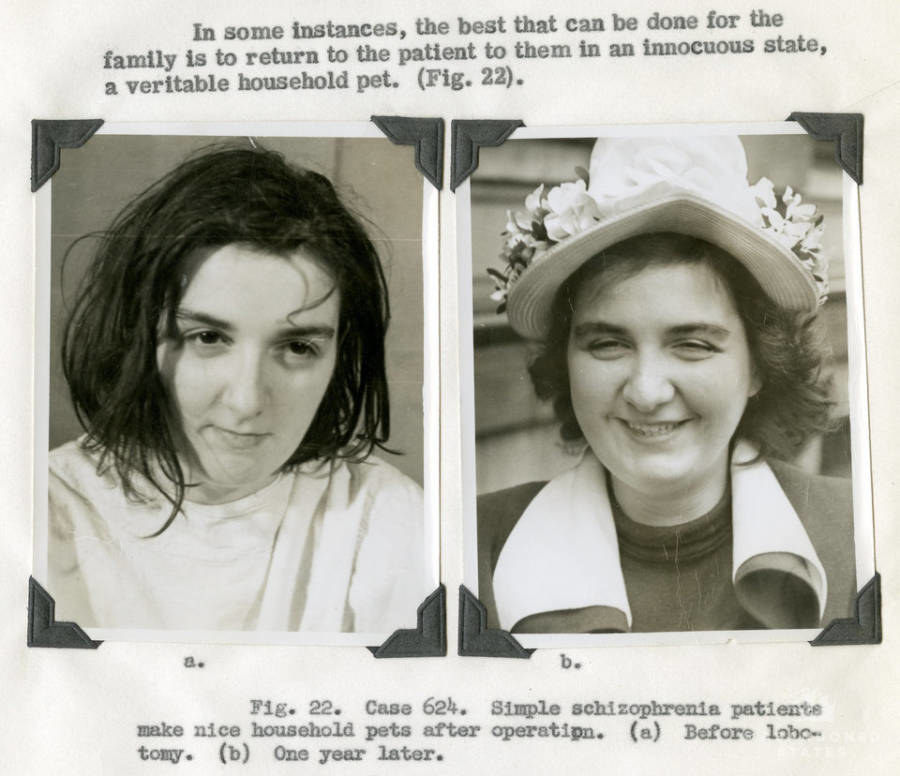 """ad for lobotomies with a before and after schizophrenia patient looking happier after, calling them a """"veritable household pet"""""""
