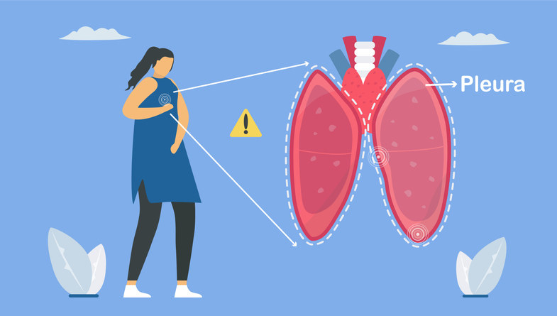 Pulmonology vector illustration about restrictive lung disease showing pleurisy, a condition in which the pleura that separates lungs from chest wall becomes inflamed