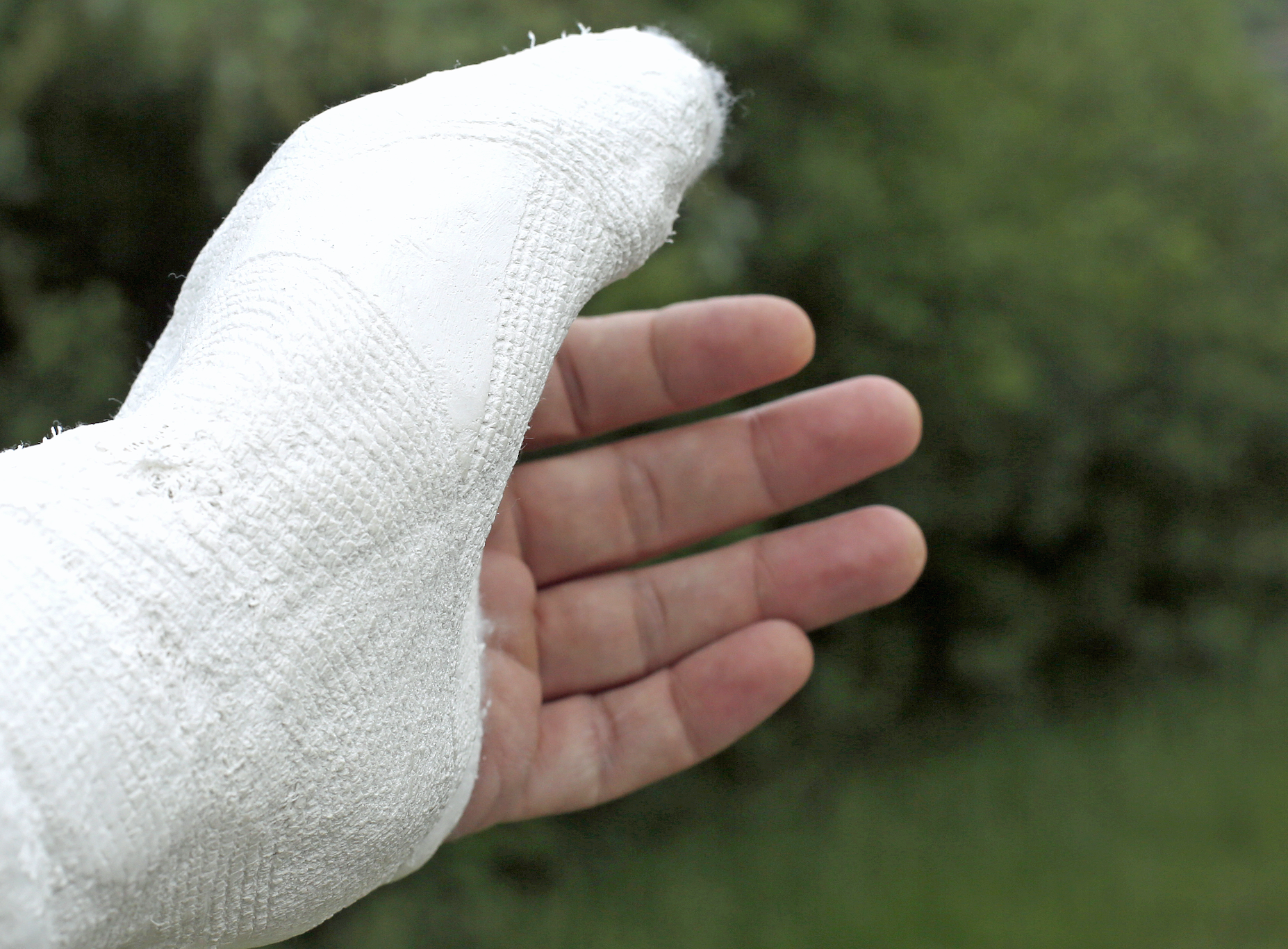 a hand in a cast