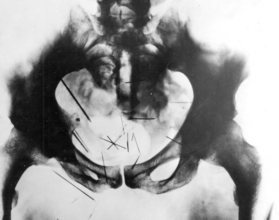 An X-ray of needles in Albert Fish's groin