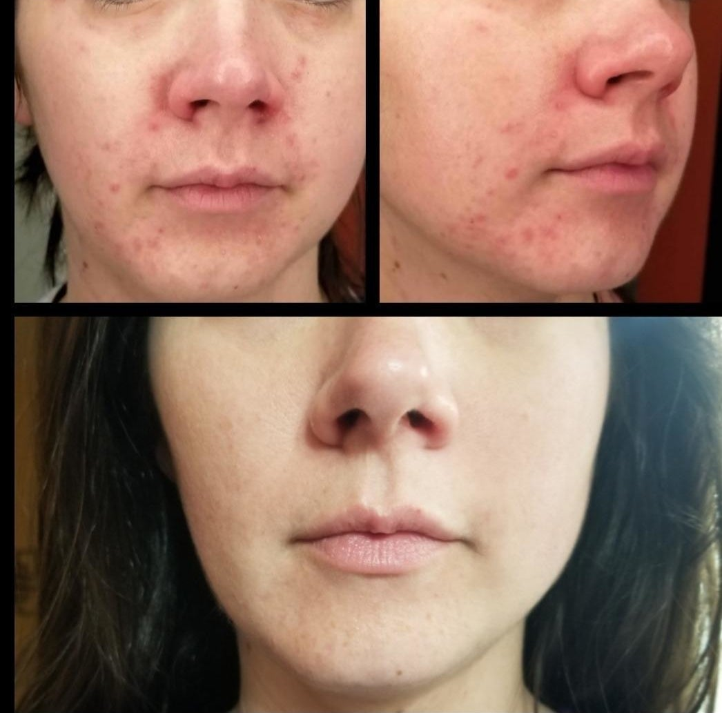 a split before and after image of a reviewer with acne around their chin and the acne cleared up