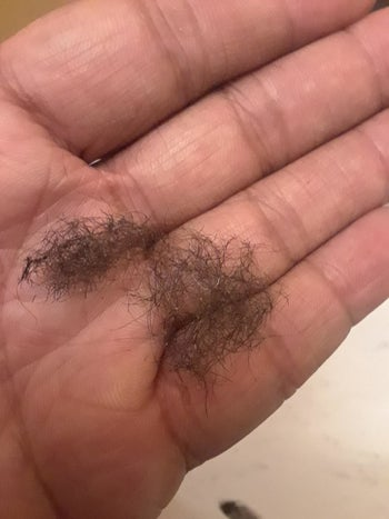 A reviewer photo of a clump of back hair in the palm of their hand