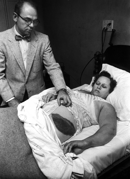 Ann Hodges lying in bed while her doctor displays the large bruise on her hip