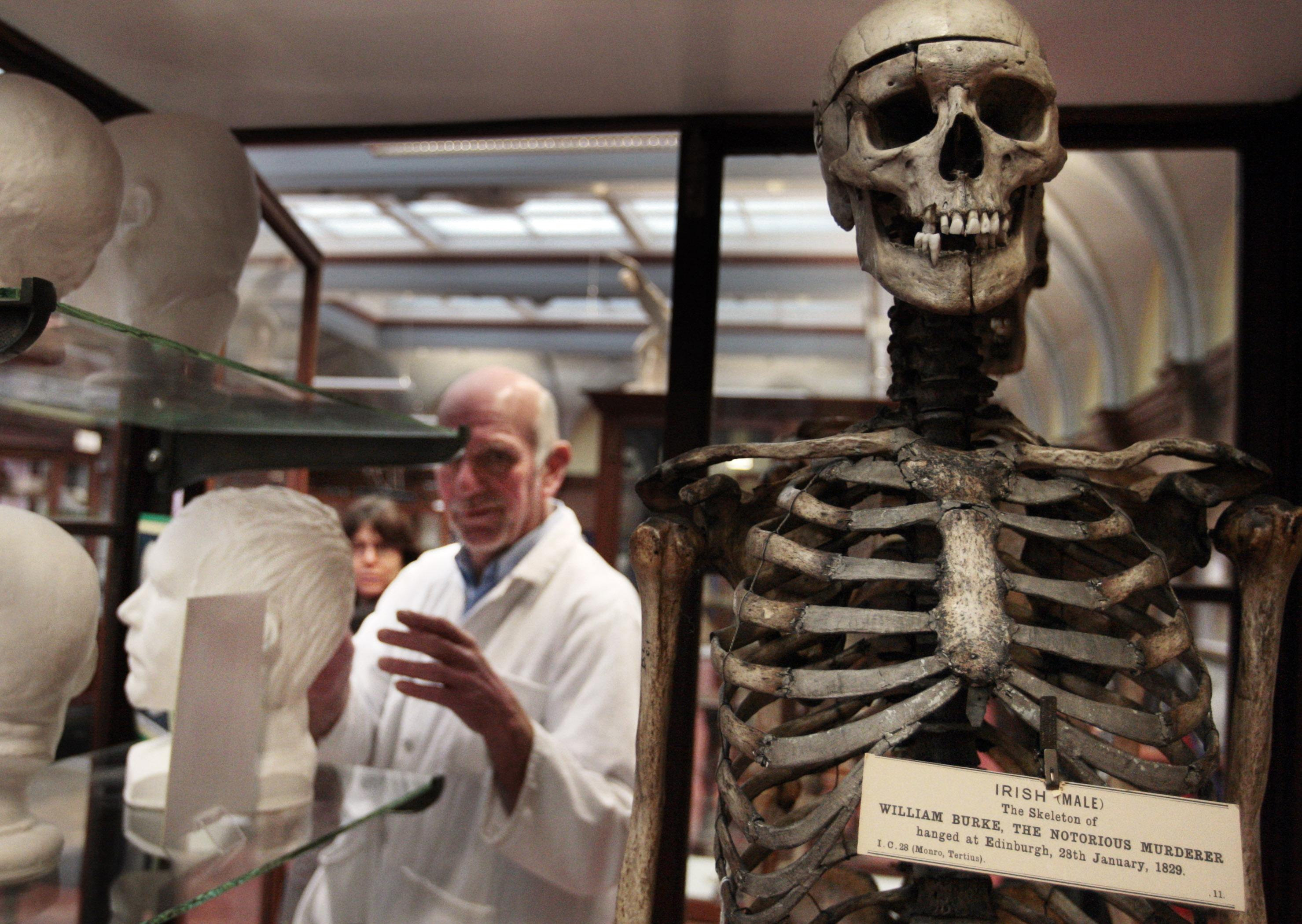 A skeleton of William Burke in a glass case