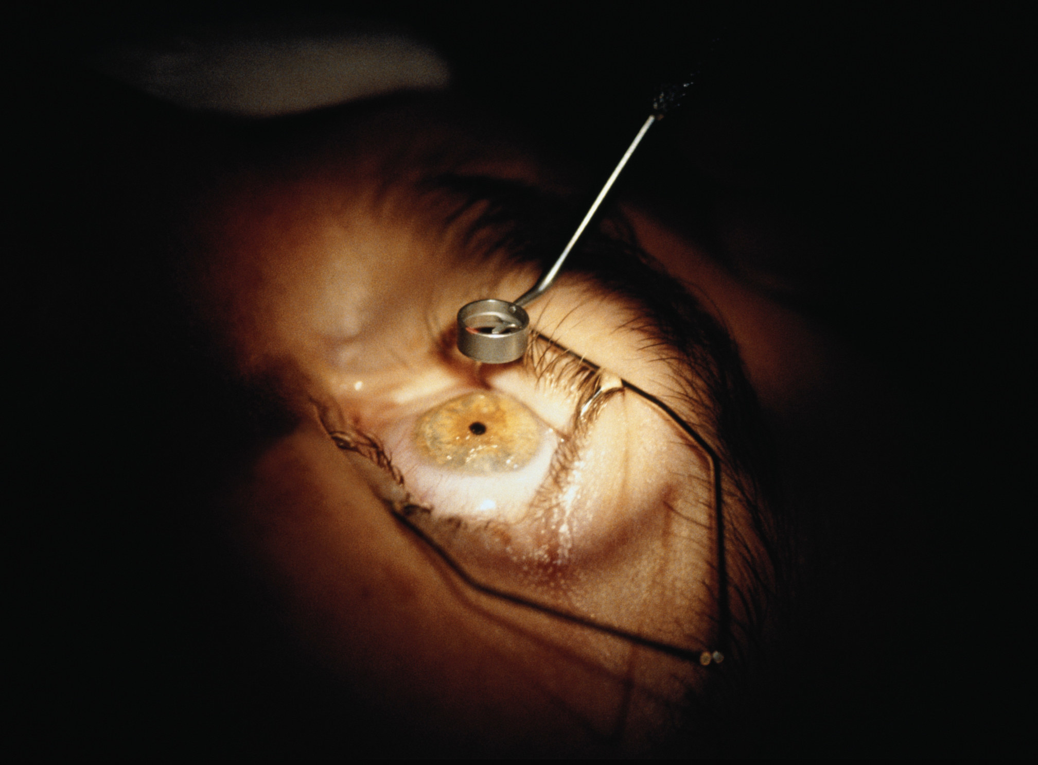 A close-up of an eye during surgery