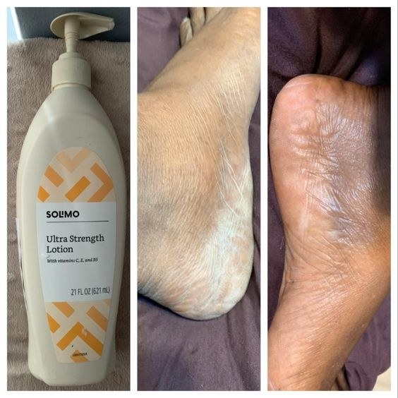Reviewer's picture of the lotion with a before and after of their once dry feet