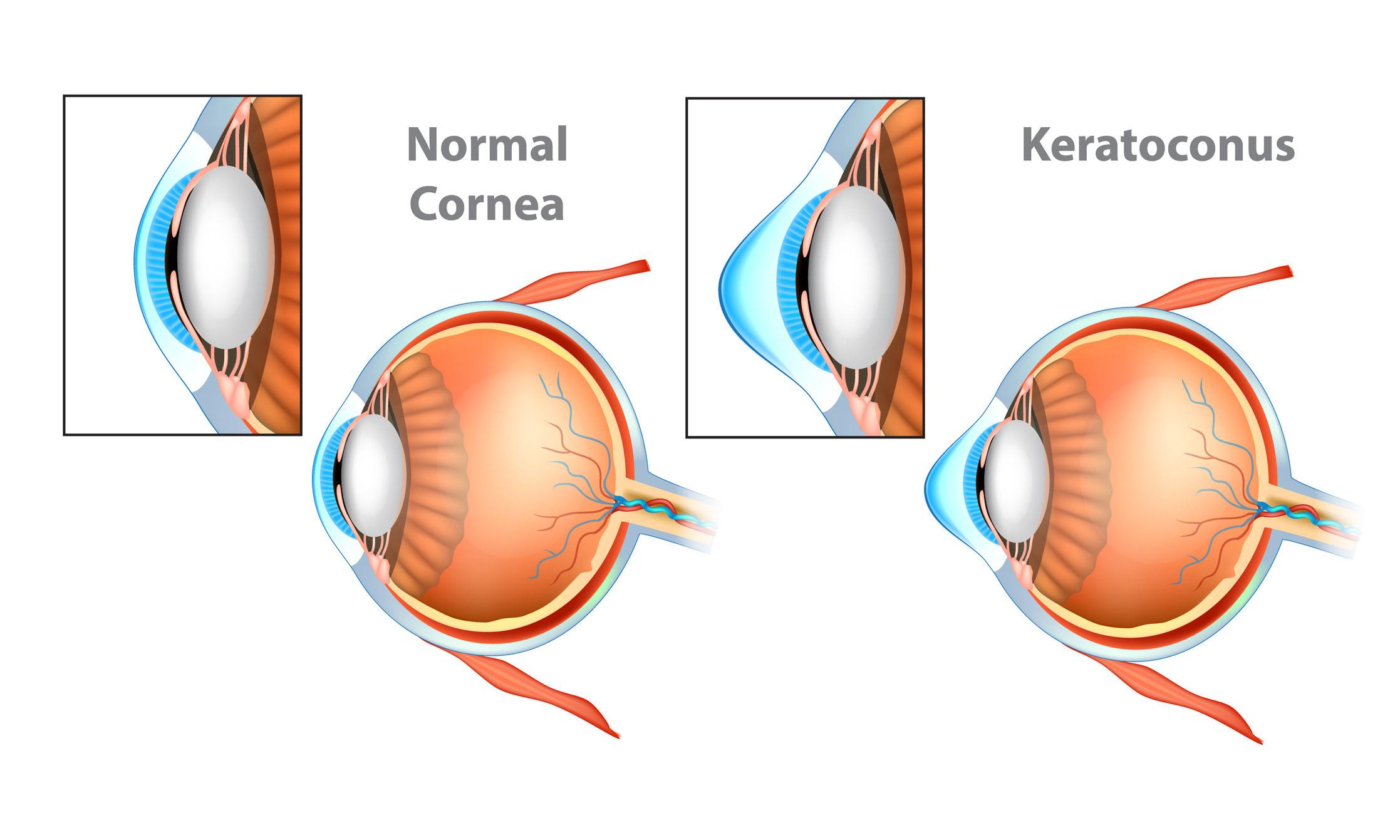 A keratoconus diagram