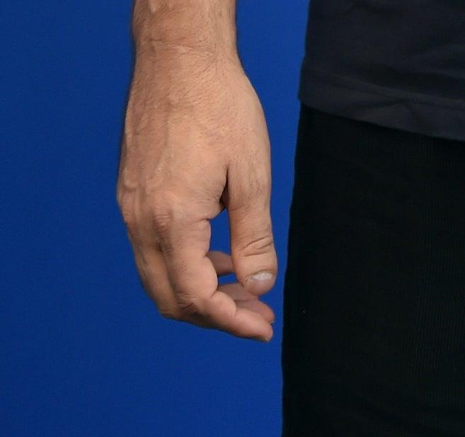 A close-up of his cut thumb