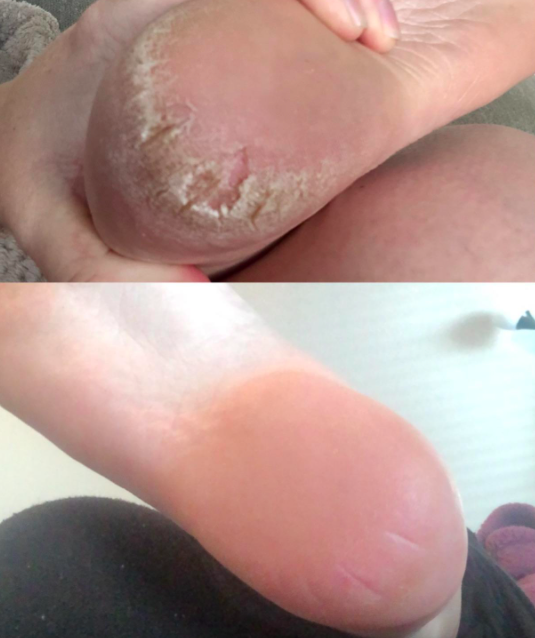 A series of customer review photos showing their heel before and after using the file