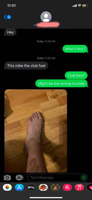 wrong number text about someone with a club foot