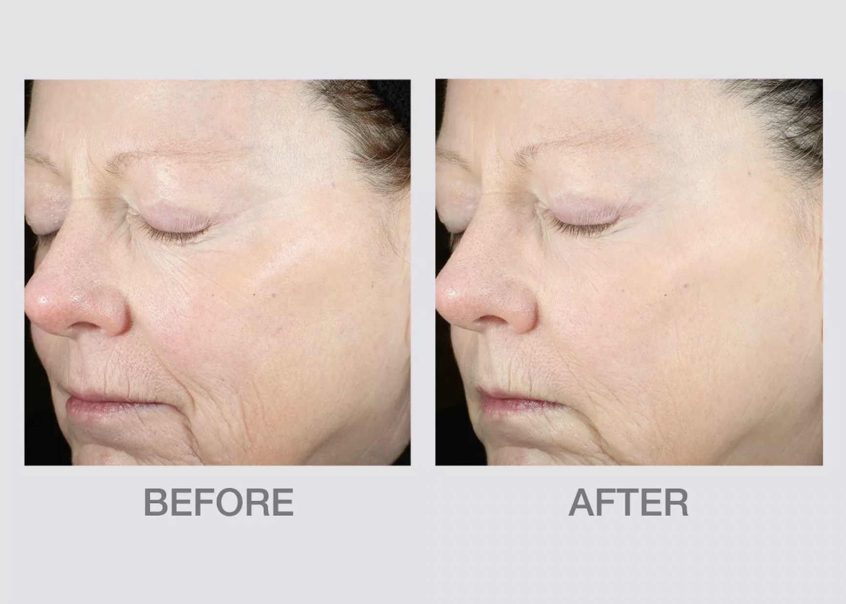 a before and after shot of a person with fine lines before, and less fine lines after
