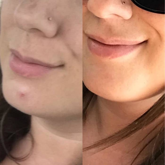 Reviewer's before photo showing a pimple on the chind, and an after photo showing the pimple gone