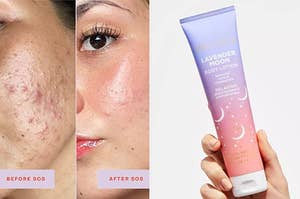 a before and after of a model using Tower28 SOS spray; a model holding a tube of lotion