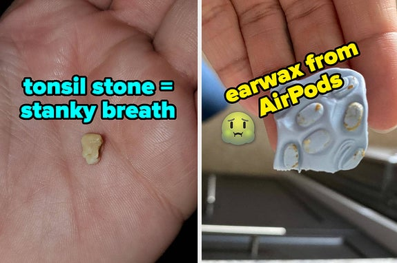 L: tonsil stone R: cleaning putty square with chunks of earwax on it that were removed from AirPods