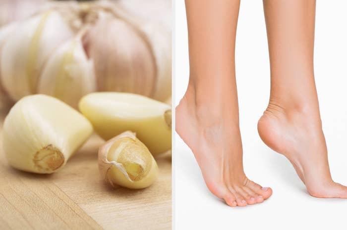 cloves of garlic, next to bare feet