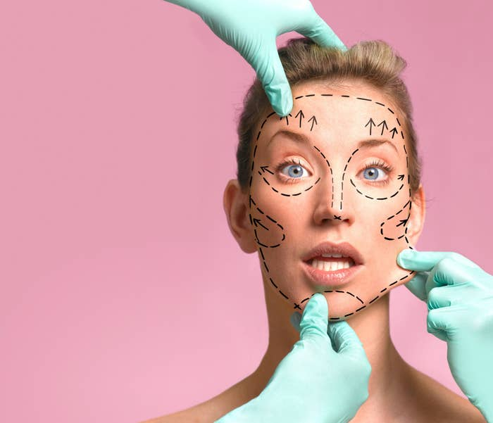 A plastic surgeon marking up a woman's face for surgery