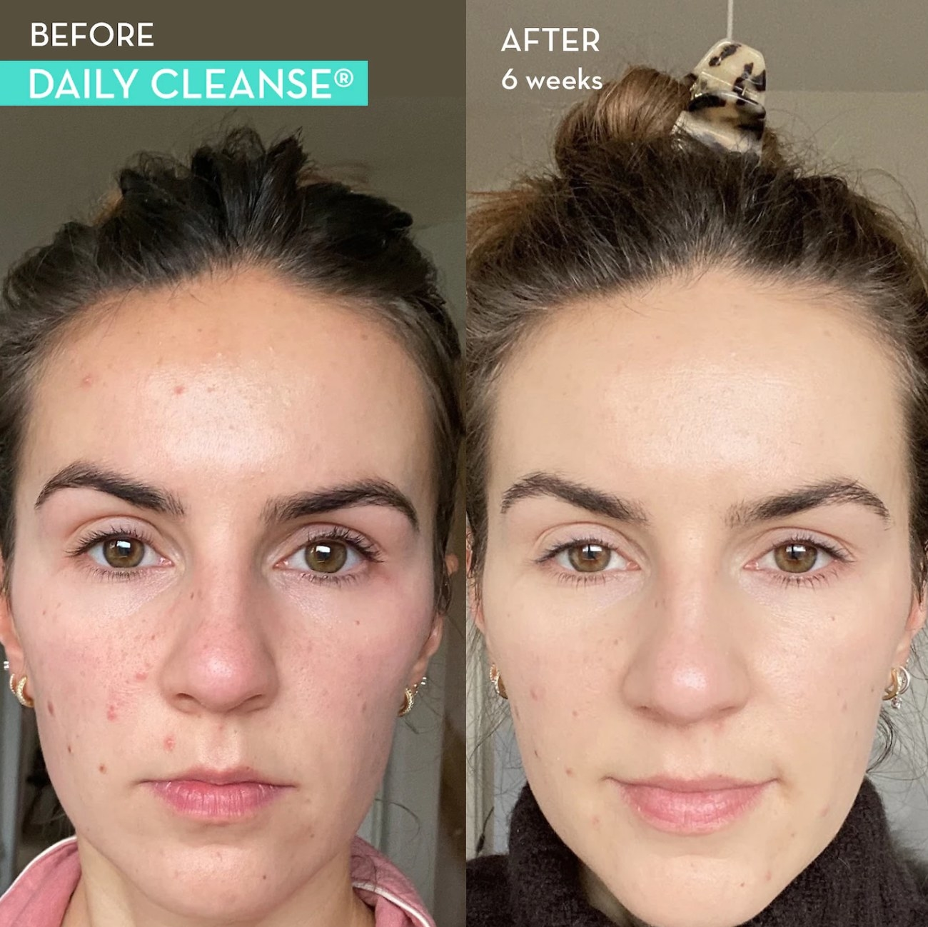 Woman showing her skin before and after taking Daily cleanse