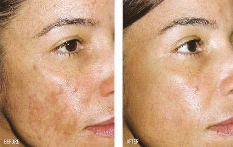 Reviewer's before photo showing melasma on their face and after photo showing melasma gone after using the serum