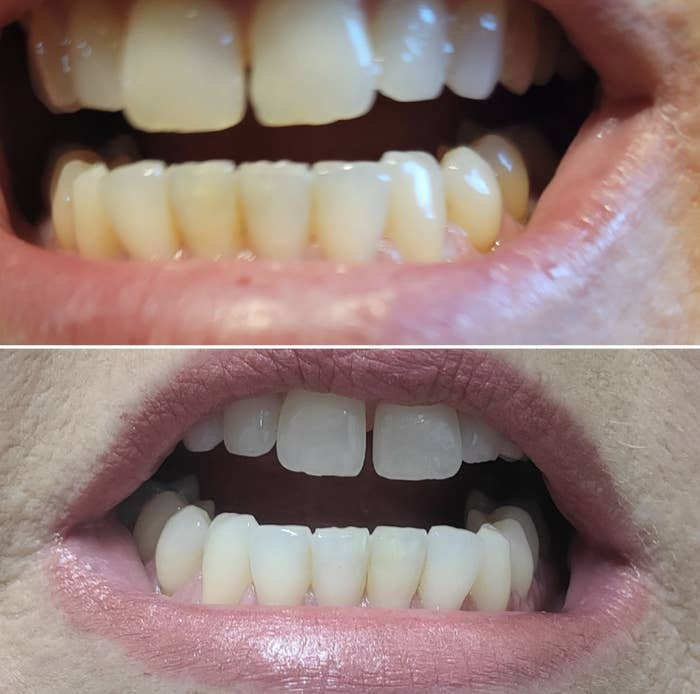 before and after images of yellow and then whiter teeth