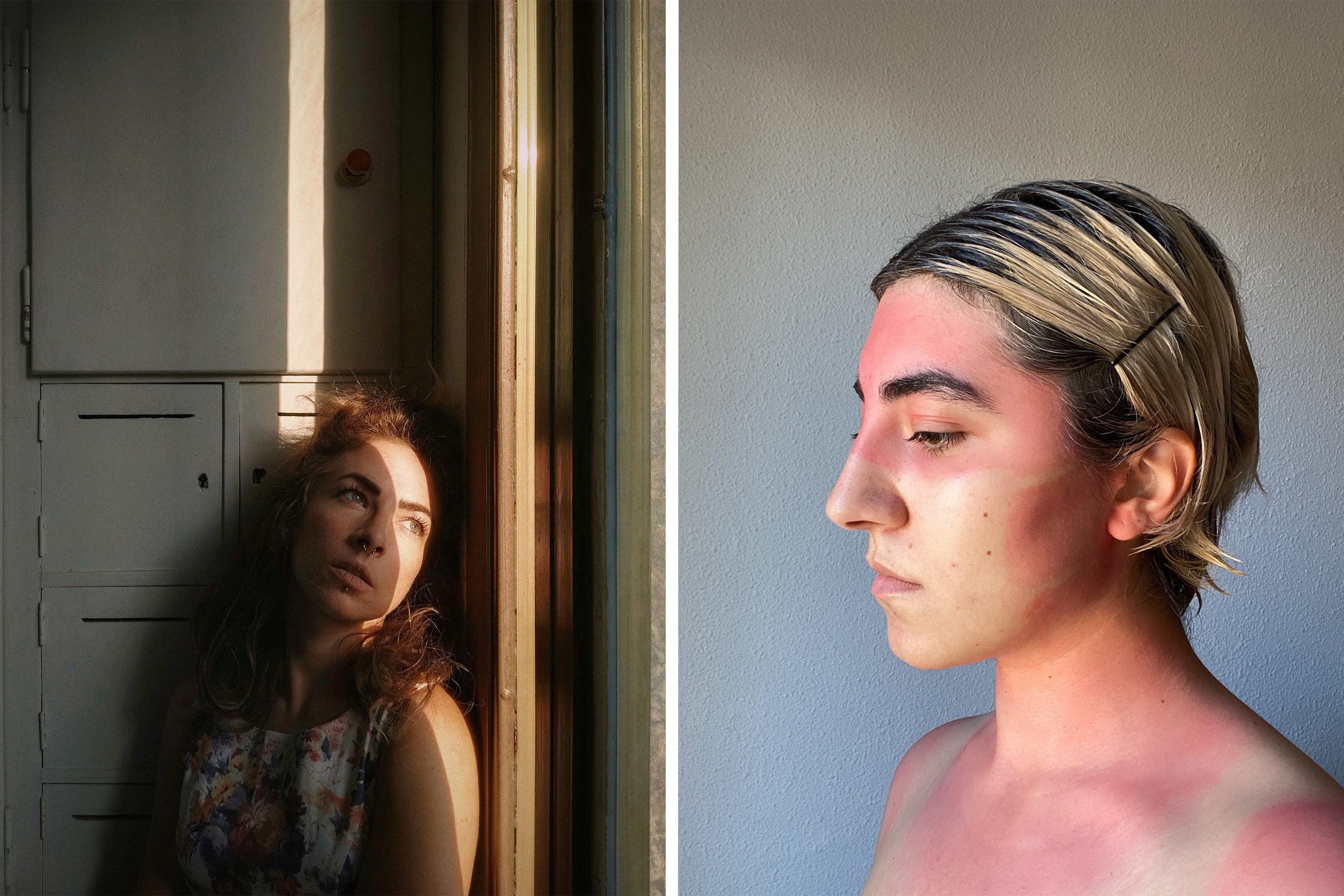 Two side-by-side images show a woman looking out the window with a strip of light on her face, and a girl with a sunburn showing mask lines