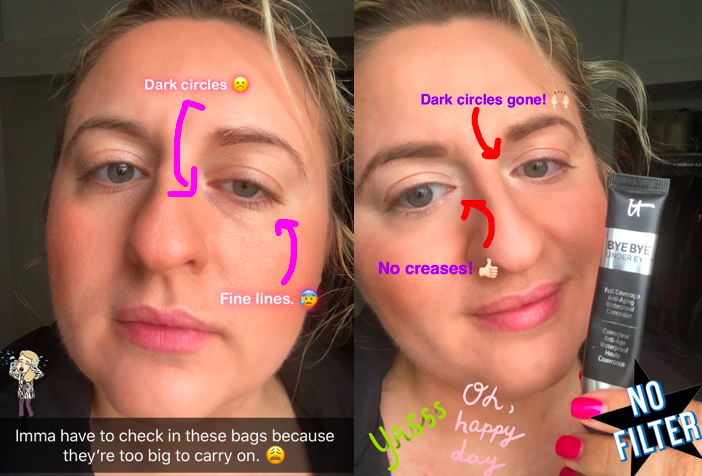 on the left buzzfeed writer's face with arrows pointing to her dark under eye circles and fine lines, on the right the same writer wearing the concealer with arrows pointing to no eye circles or lines