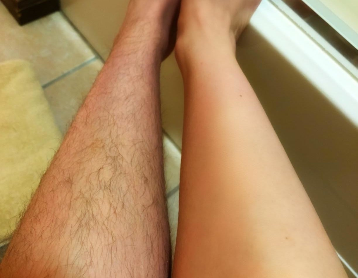 a reviewer photo of one leg covered with hair and the other hair-free