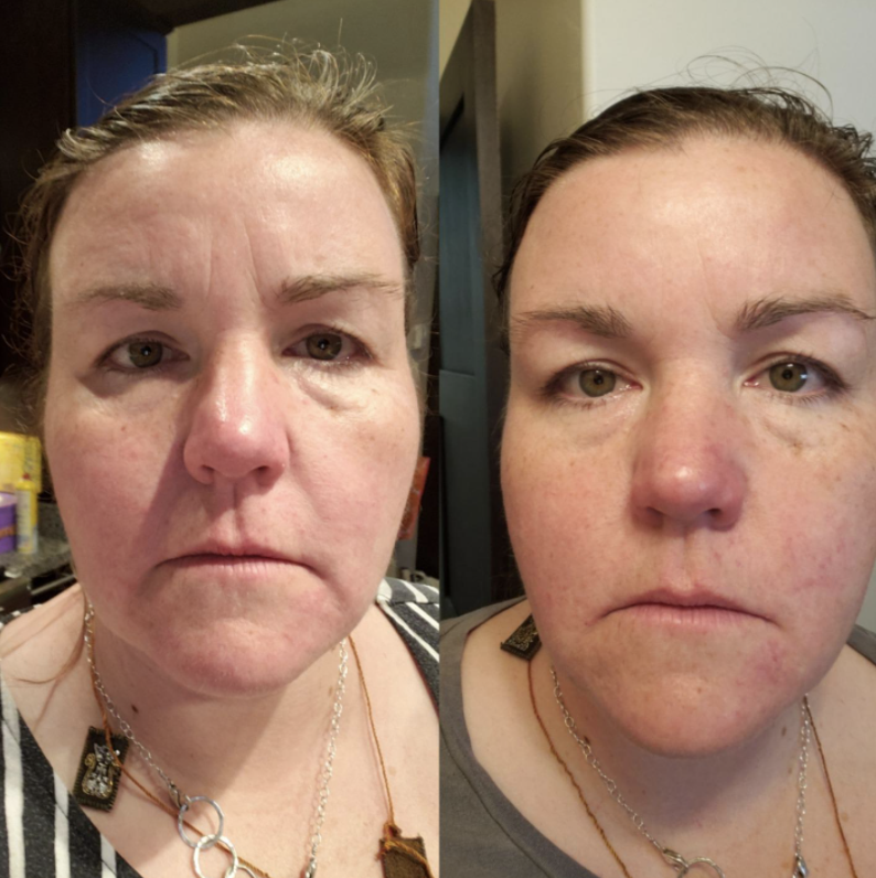 A customer review before and after showing the cream reduced their wrinkles and made their face look plumper