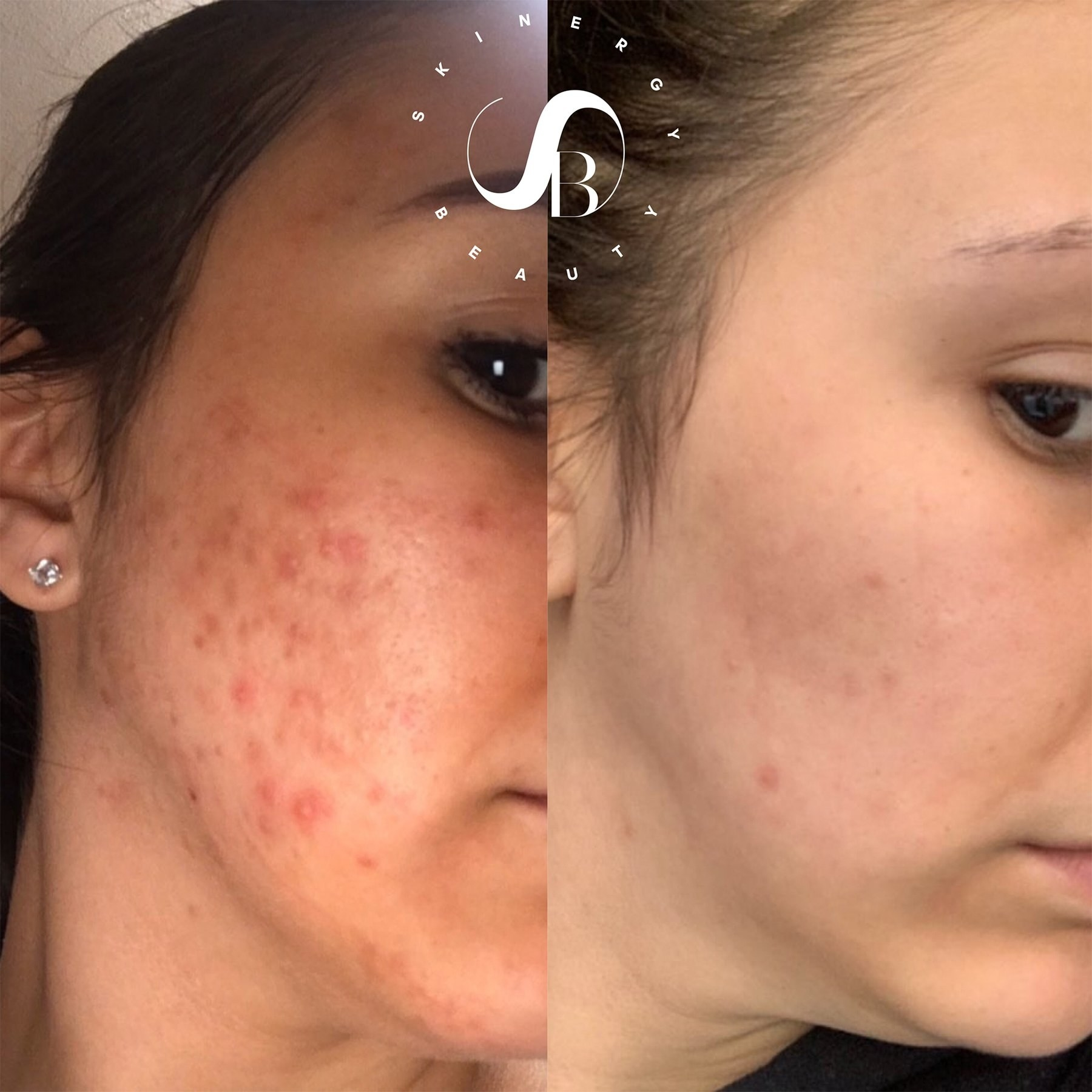reviewer pic showing spots dramatically lightened on skin thanks to the product