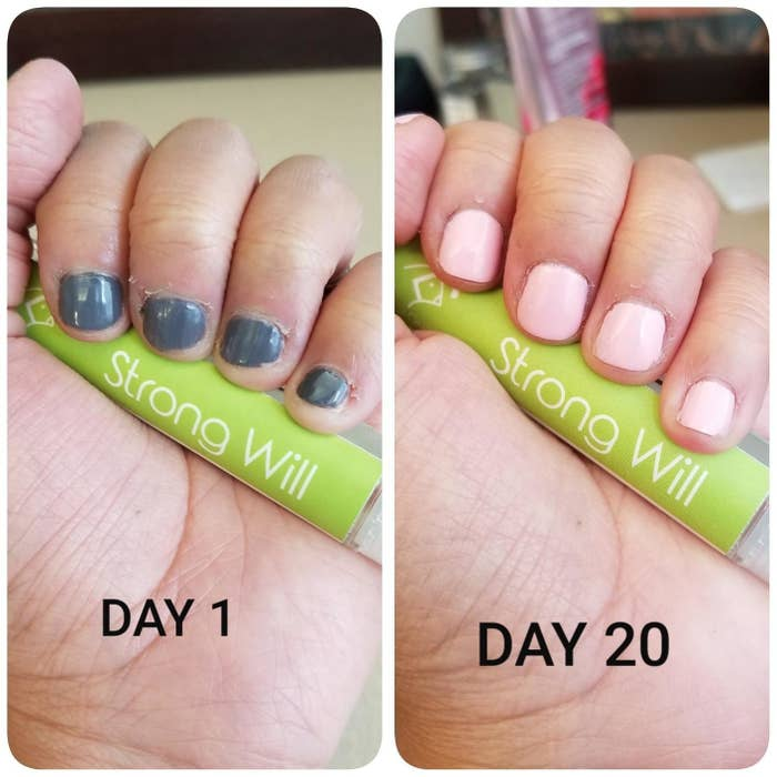 a review photo of someone's nails from day 1 and day 20 that shows significant nail growth
