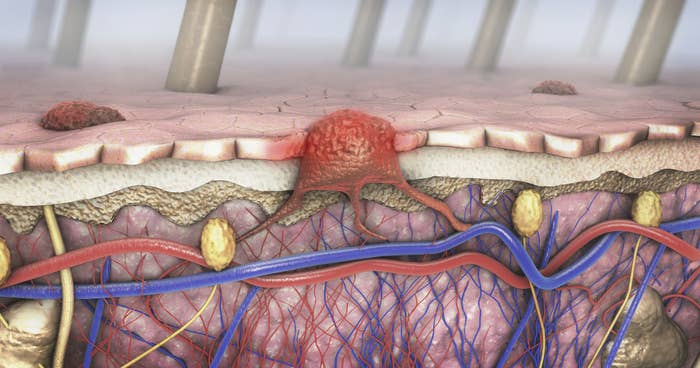 An illustration of melanoma