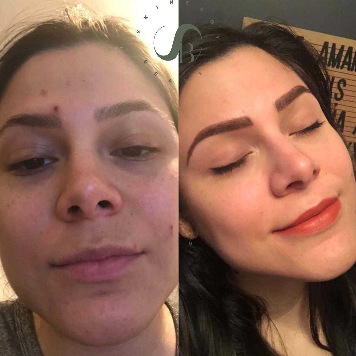 before photo of a reviewer with tired-looking skin and breakouts next to a photo of the same reviewer with clear, plumper-looking skin after using the moisturizer
